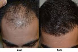 dhi-implant-capillaire-fue-fut-cheveux-methode-technique