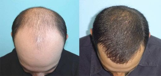 implant-capillaire-methode-technique-FUE